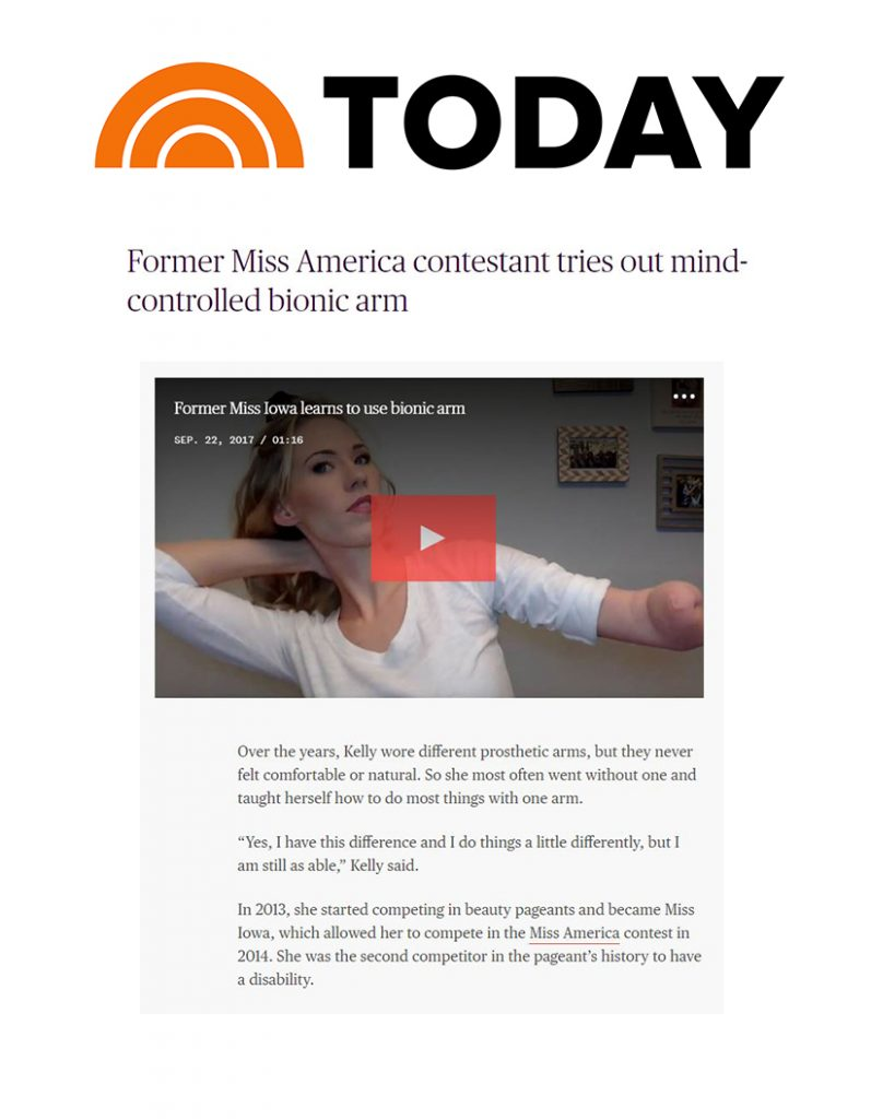Coapt in Today Show
